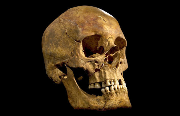 Remains of King Richard III - Skull of King Richard III