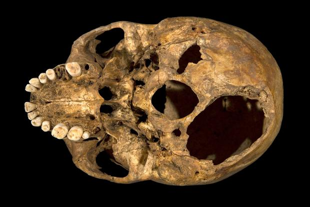 A skull that scientists said is that of King Richard III shows signs of two potentially fatal injuries at its base.