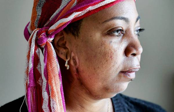 A scar from a bullet wound can be seen below the ear of Marcia Santiago, 45, as she talks to Orlando Sentinel reporter on February 10, 2013. Santiago survived being shot five times by her ex-boyfriend in a shooting rampage that killed her best friend and two other women at her Casselberry salon.