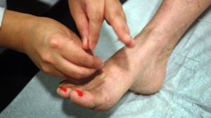 Could acupuncture help relieve seasonal allergies?