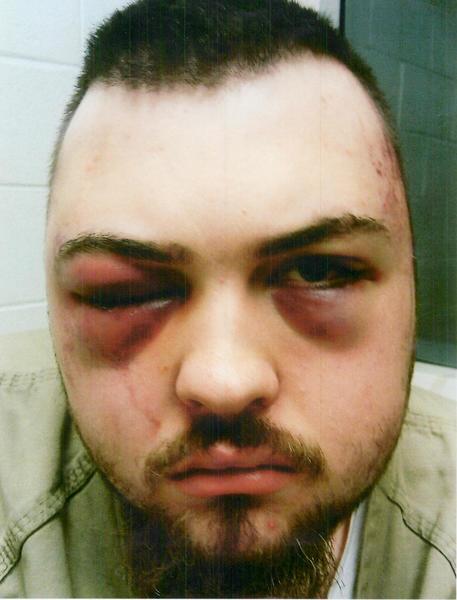 Kyle Pillischafske, a Mt. Prospect man beaten in Cook County Jail.