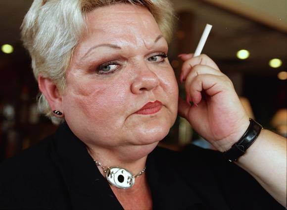 Debi Austin, anti-smoking advocate, dies of cancer