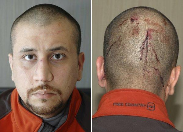 George Zimmerman is shown shortly after his February 2012 altercation withTrayvon Martin, who was killed. Zimmerman's attorney waived a pretrial self-defense hearing that could have given Zimmerman a chance to avoid trial for murder.