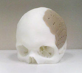Oxford Performance Materials built a skull implant, like this one, for a U.S. man. The implant was placed surgically this week, replacing 75% of his skull.