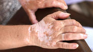Researchers from Loyola University Chicago said they have developed a mutant form of a protein that seems to cure mice of vitiligo, a skin condition found in millions of people around the world.