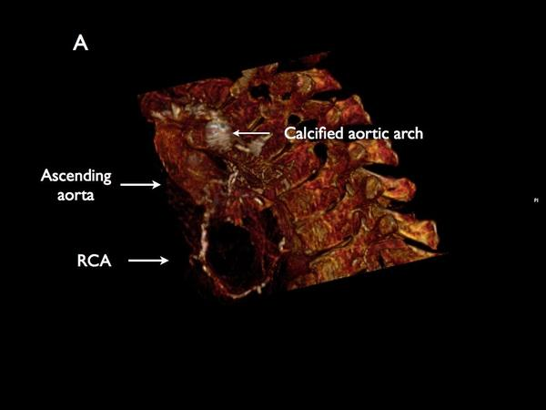 In the mummies' scans, calcified arterial blockages -- of the same sort that cause heart attacks and strokes in heart disease sufferers today -- were apparent. Here, blockage in an aorta.
