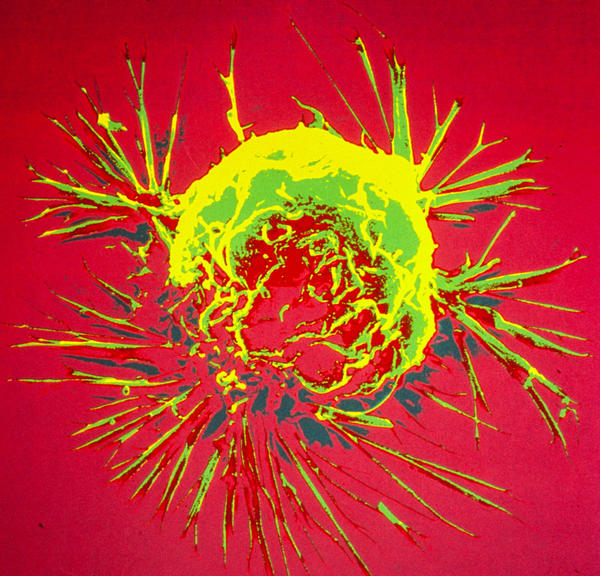 Research published Wednesday in the New England Journal of Medicine indicates that exposure to radiation during breast cancer treatment is linked to an increased risk of heart disease. Shown above is an electron microscope image of a breast cancer cell.