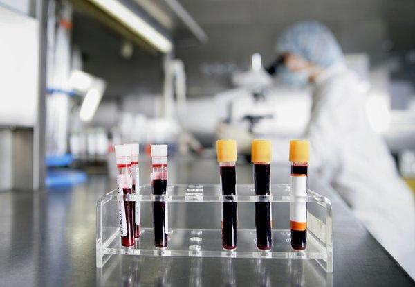 Scientists worry cuts to labs such as the one at the National Cancer Institute could have a long-term effect.