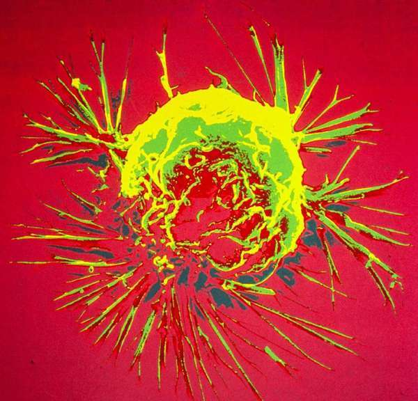 A scanning electron microscope image of a breast cancer cell. Now, using DNA sequencing techniques, researchers can peer even deeper into tumors to understand their genetics.