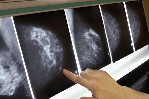 The Supreme Court is considering a patent case involving so-called breast cancer genes. Above, a mammogram X-ray.