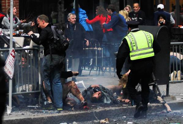Medicine has made great strides in the reattachment of severed limbs in the last two decades. But the nature of bomb blast injuries like many seen at the Boston Marathon on Monday make such repairs impossible.
