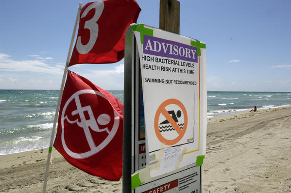 An advisory sign warns swimmers of high levels of bacteria in the ocean at Harrison Street in Hollywood.