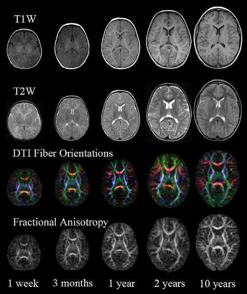 Brain scans similar to these were found in a study to predict how much third-grade students would improve in math after tutoring.