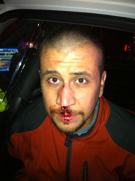George Zimmerman, his face bloodied, immediately after his fatal confrontation with Trayvon Martin.