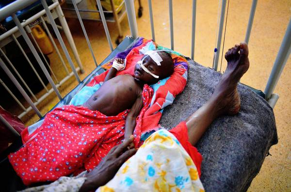 A malnourished child is hospitalized in Mogadishu, Somalia's capital. Nearly 260,000 Somalis perished during the nation's 2010-12 food crisis, a report says.