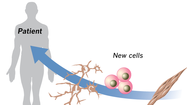 Interactive graphic: Creating stem cells from skin cells