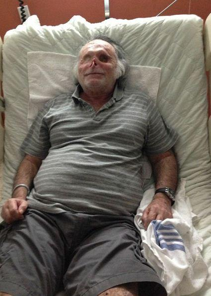 One of the updated photos released of Ronald Poppo, 66, the man who was left blinded when he was attacked and his face was chewed on the MacArthur Causeway in Miami on May of 2012.
