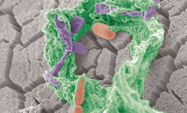 Gut microbes again linked to diabetes -- but geography matters