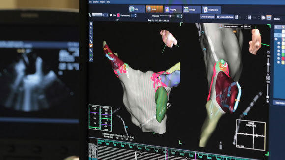A monitor shows the human heart in a 3D mapping system during a procedure at Advocate Masonic Medical Center in Chicago last September.