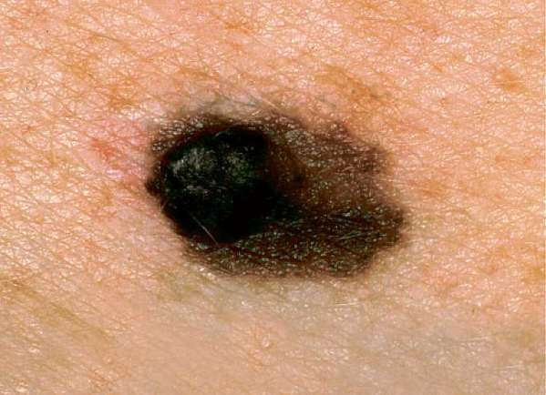 FDA approves skin cancer drugs and genetic test