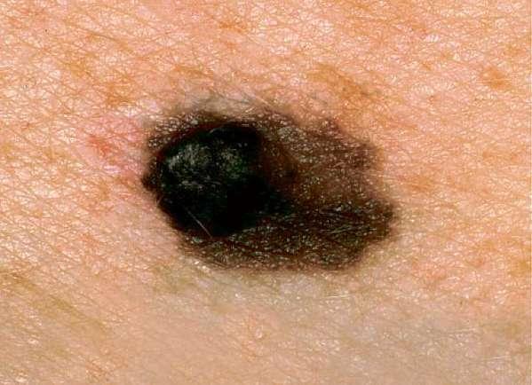 qimr melanoma test - photo #30