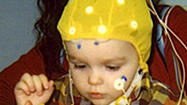 Brain wave study sheds light on autism among toddlers