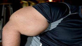 Pictures: Guess that bicep