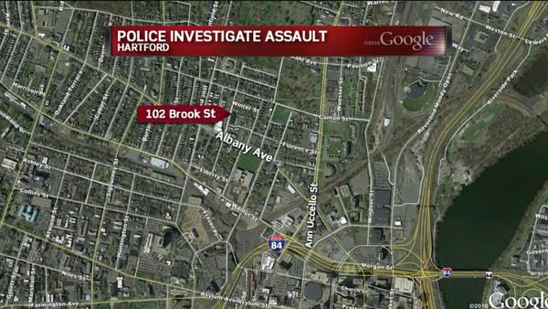 Hartford detectives are investigating an assault that took place near 102 Brook St. around 9:30 p.m. on July 10.