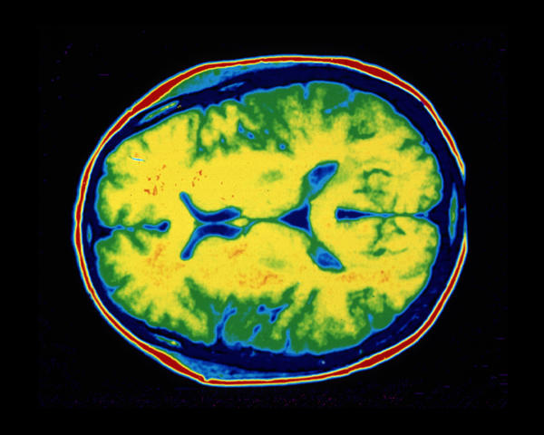 Human brain CT scan.