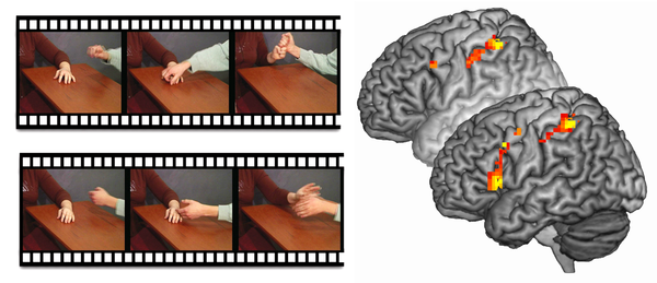 A brain scan, top, taken when psychopaths viewed film clips, showed little activity in empathy circuits. After being instructed to associate with one of the actors, empathy circuits became more active, as shown in the bottom image.