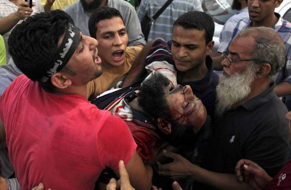 Supporters of Egypt's ousted President Mohamed Morsi carry an injured man to a field hospital after clashes with security forces in a Cairo neighborhood where pro-Morsi protesters have been holding a sit-in.