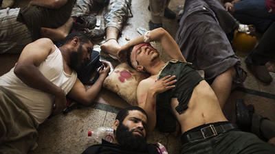 Wounded supporters of ousted Egyptian president Mohamed Morsi lie on the floor of a makeshift hospital in Cairo's Nasr City district.