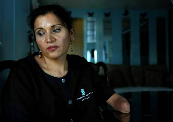 "Argelia Rico, a housekeeper at Embassy Suites in Irvine, says the hotel's management is ""trying to shut me up."" Though she lacks part of an arm, she changes as many as 25 beds a day, double the workload of her unionized counterparts in L.A. County."