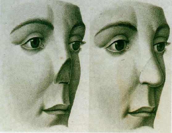 "Cover of the Christie's catalog ""The History of Plastic Surgery; The Library of Eugene H. Courtiss, M.D."" In China, a surgeon built a replacement nose on a man's forehead."