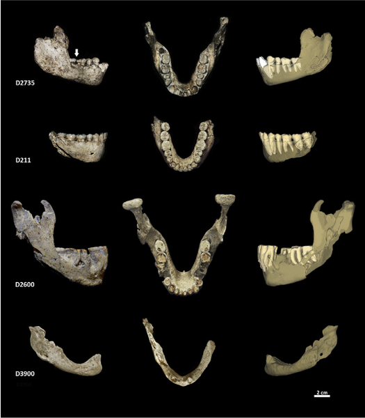 Digitally reassembled jawbones from an extinct species of hominid that populated Dmanisi, Georgia, roughly 1.8 million years ago. The arrow in the top left jaw indicates a lesion made by frequent toothpick use.