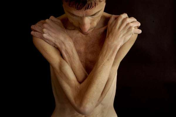 Anorexia nervosa and bulimia are debilitating and occur in 1% to 3% of women, less frequently among men.