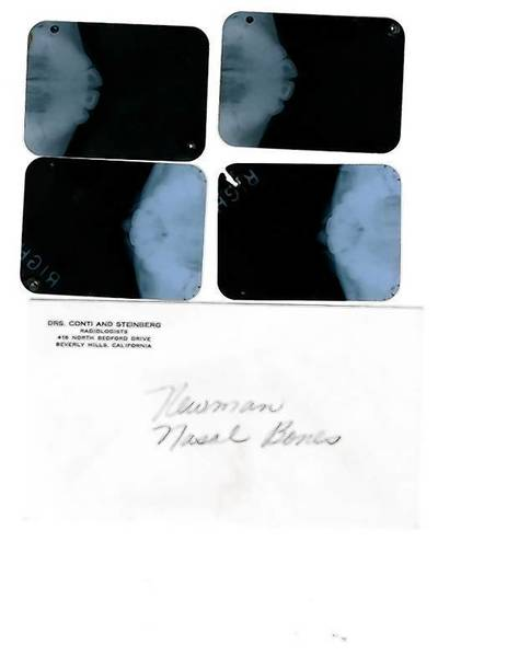 A set of X-rays of Marilyn Monroe is seen in this handout photo provided by Julien's Auctions in Beverly Hills.
