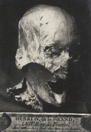The embalmed head believed to have been that of French King Henri IV.