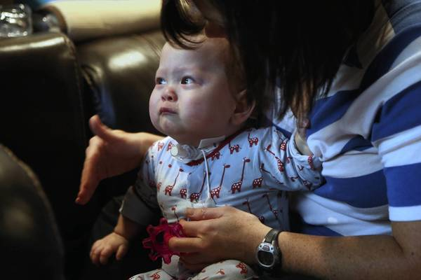 Quincy Goldberg, then 16 months, cries while he works with physical therapist Erin Quane on his reaching and standing at his home in Chicago in 2012. Three weeks ago, Quincy, now 2, had reconstruction surgery and is now able to breathe through his nose and mouth.