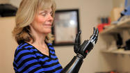 Amputees help advance thought-controlled prosthetic technology