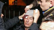 Ukraine opposition leader injured in clash with police