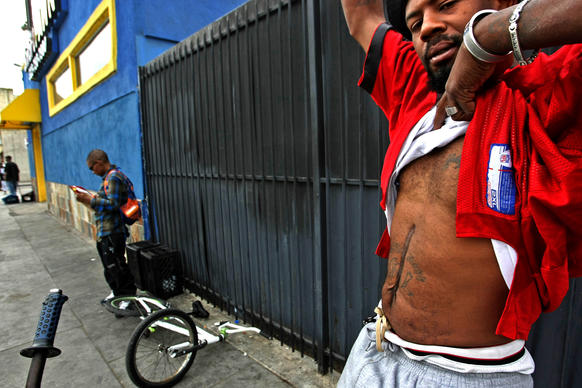 L. Christopher Caver Jr., 38, shows a scar on his stomach, a result of a 2012 shooting when he was hit seven times inside his car. He has lived in the Westmont area of South L.A. for more than a decade.