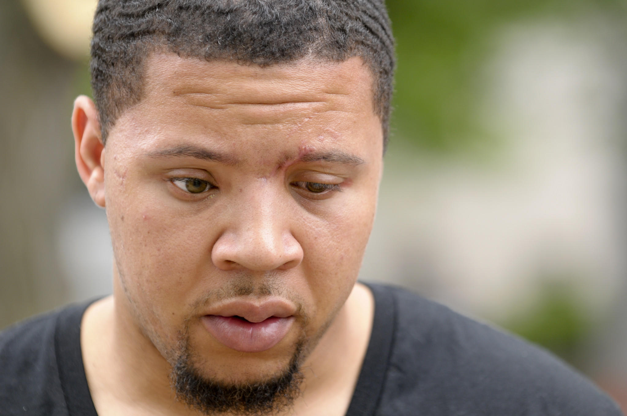 Alexander Bradley, a man who was allegedly shot in the face by Aaron Hernandez in Florida, appearing at Hartford Superior Court for a hearing on a domestic charge in July.