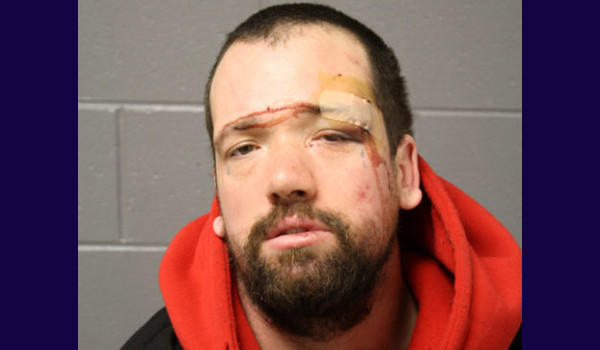 Cory D. York, 34, threw his girlfriend's glasses out of his truck, punched her, ran over her leg with his SUV and then fought with police after fleeing the scene on Friday, prosecutors say. He's charged with felony aggravated domestic, battery, driving on a revoked or suspended license and aggravated battery to a police officer, as well as misdemeanor battery charges and traffic citations.