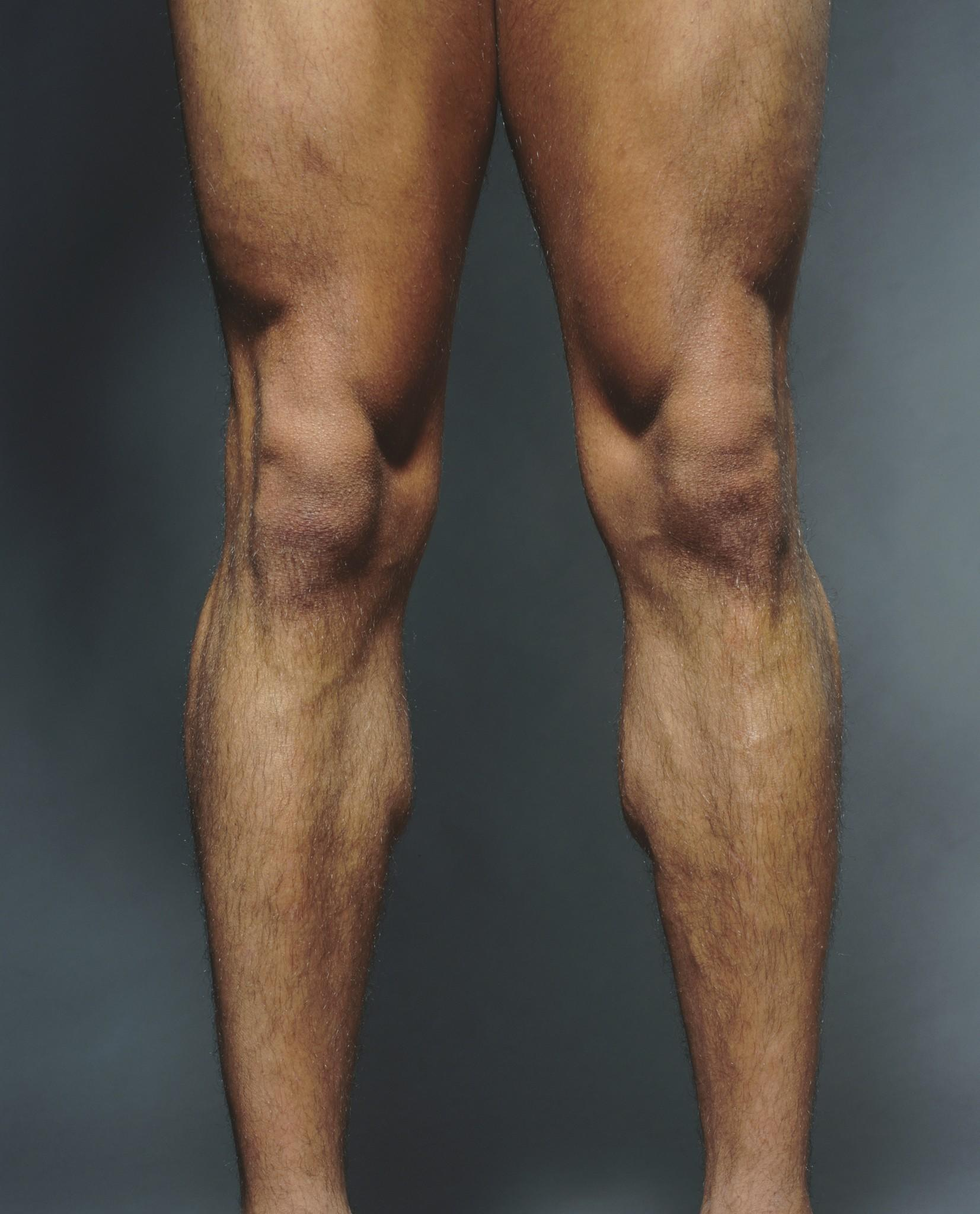 A new study concludes that glucosamine supplementation does not prevent deterioration of knee cartilage or reduce knee pain.