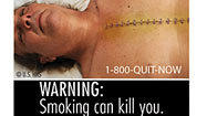 FDA's new warning labels for cigarettes