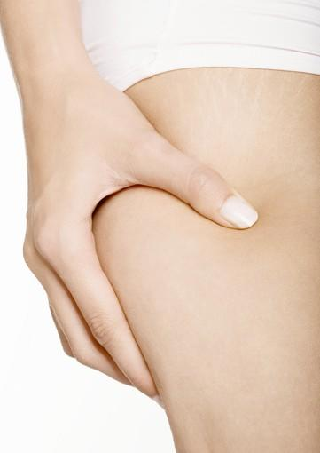 What does the FDA's blessing of fat-melting Cellulaze mean?