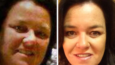 Rosie O'Donnell drops 50 pounds, posts before-and-after pictures