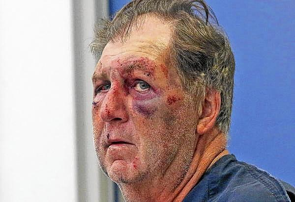 William Cates, 64, is shown as he appeared in 2013 shortly after his arrest after an altercation in Baldwin Park with an Orlando police officer.