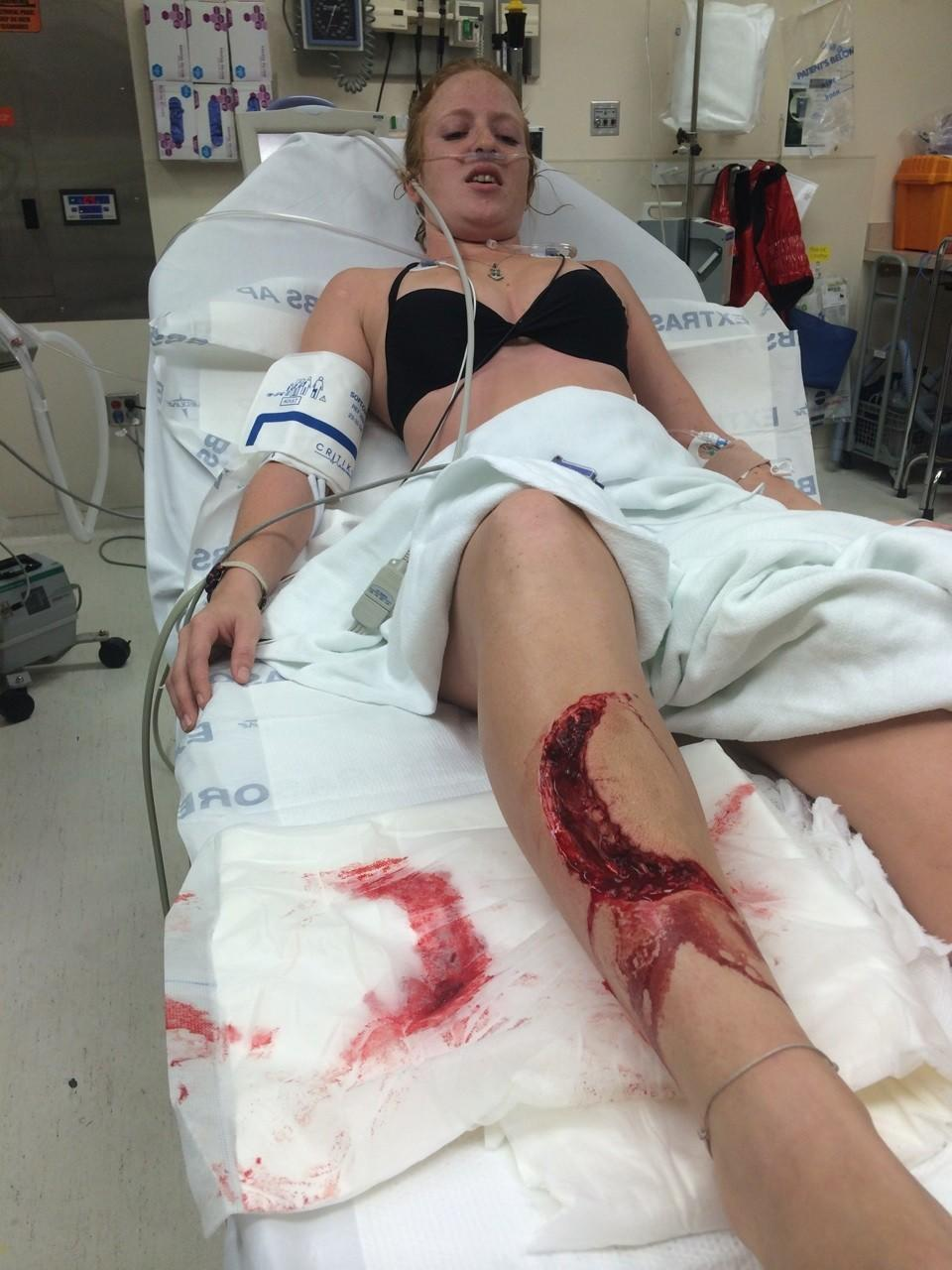 In a rare attack in the Intracoastal Waterway, a 22-year-old woman was bitten by what officials say was likely a shark. Jessica Vaughn, 22, of Coral Springs, was in surgery Sunday evening at Broward Health Medical Center. She suffered a large gash to her right leg during the 2 p.m. attack, but she is expected to make a full recovery, her friend Peter Hogge said. Vaughn had been on a boat with Hogge and three other friends near Bayshore Towers condominiums, just south of Sunrise Boulevard. The friends put on life vests and jumped into the water to go inner-tubing. Woman identified by friends as Jessica was bitten by what officials say may have been a shark on Sunday in Fort Lauderdale. She's pictured at Broward Health. Source: courtesy of Peter Hogge Handout photo provided by: courtesy of Peter Hogge